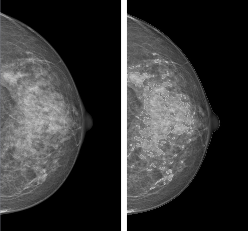 Two X-ray images (mammograms) of a breast in side profile; both show breast tissue as greyish-white on black background; the image on the right has brighter areas that indicate regions of higher brest tissue density.